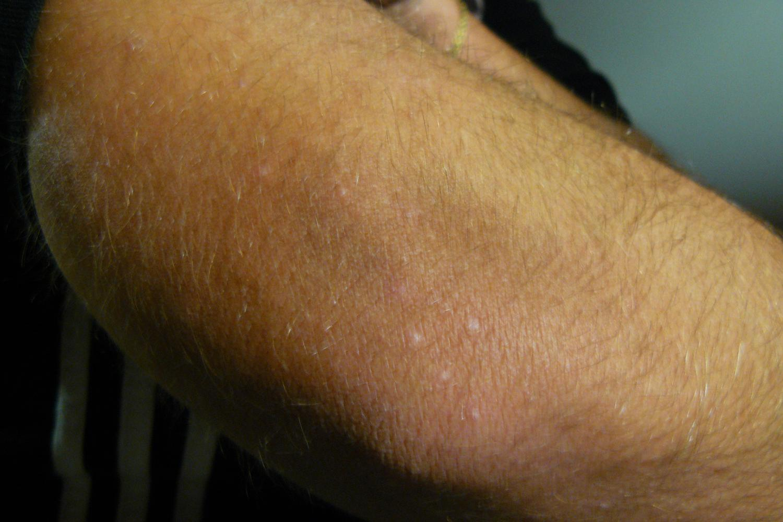 Sur les bras de Lucie, trois semaines après les dernières piqures de punaises, on aperçoit encore des marques blanches.