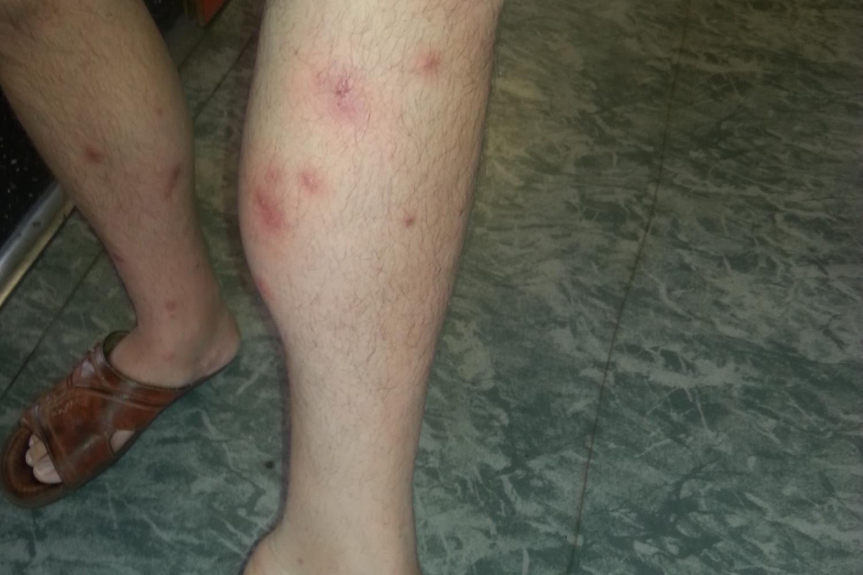 Cet étudiant a fait une réaction allergique violente aux piqures des nuisibles.